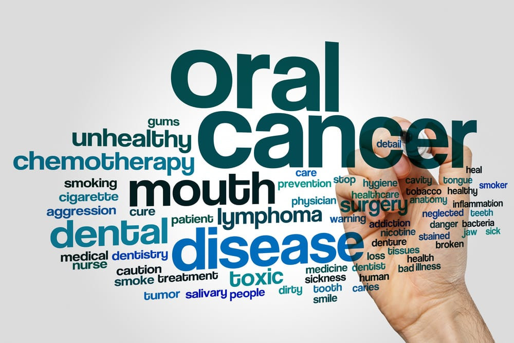 Oral Cancer Graphic